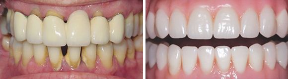 before and after teethxpress